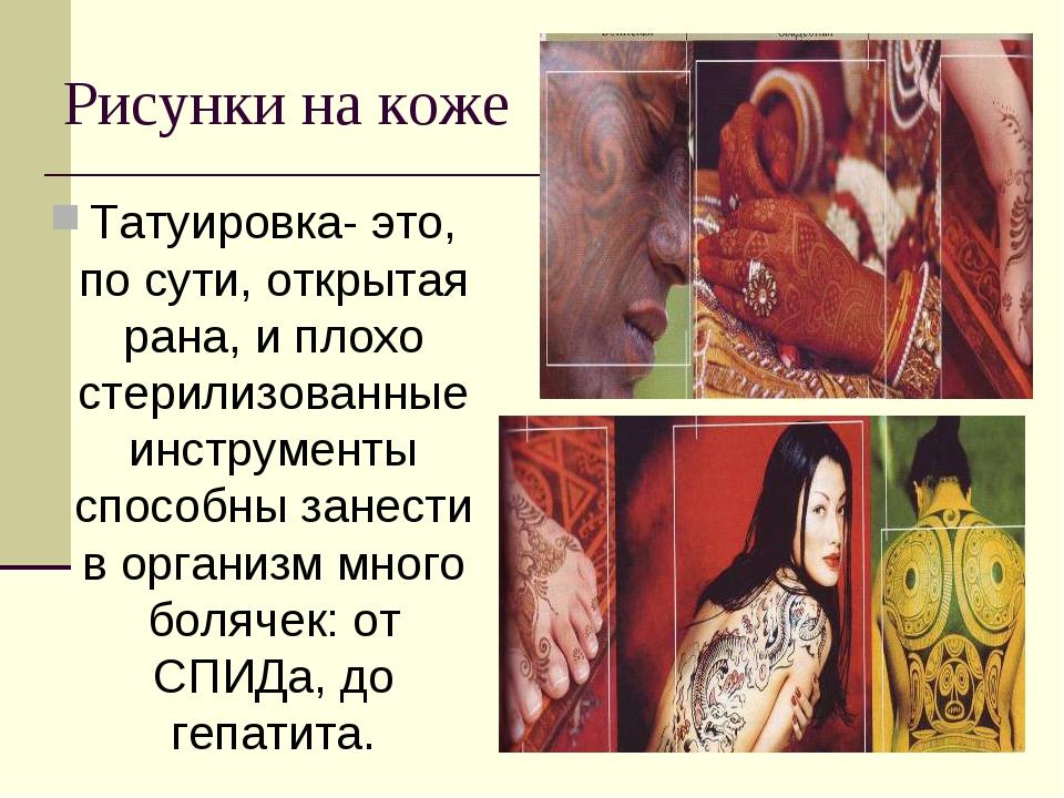 Рисунки на коже Татуировка- это, по сути, открытая рана, и плохо стерилизован...