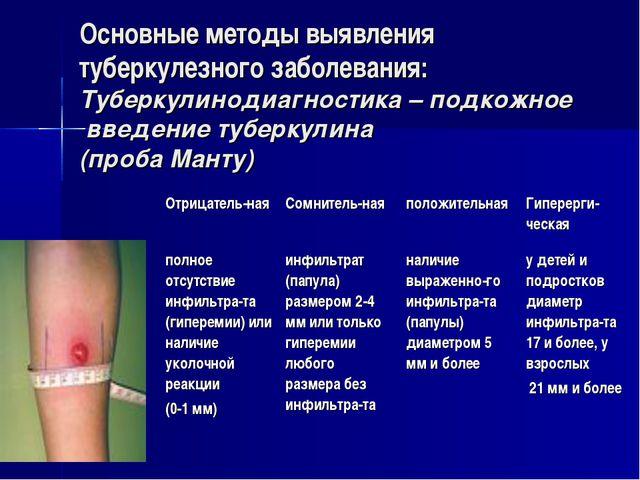 Основные методы выявления туберкулезного заболевания: Туберкулинодиагностика...