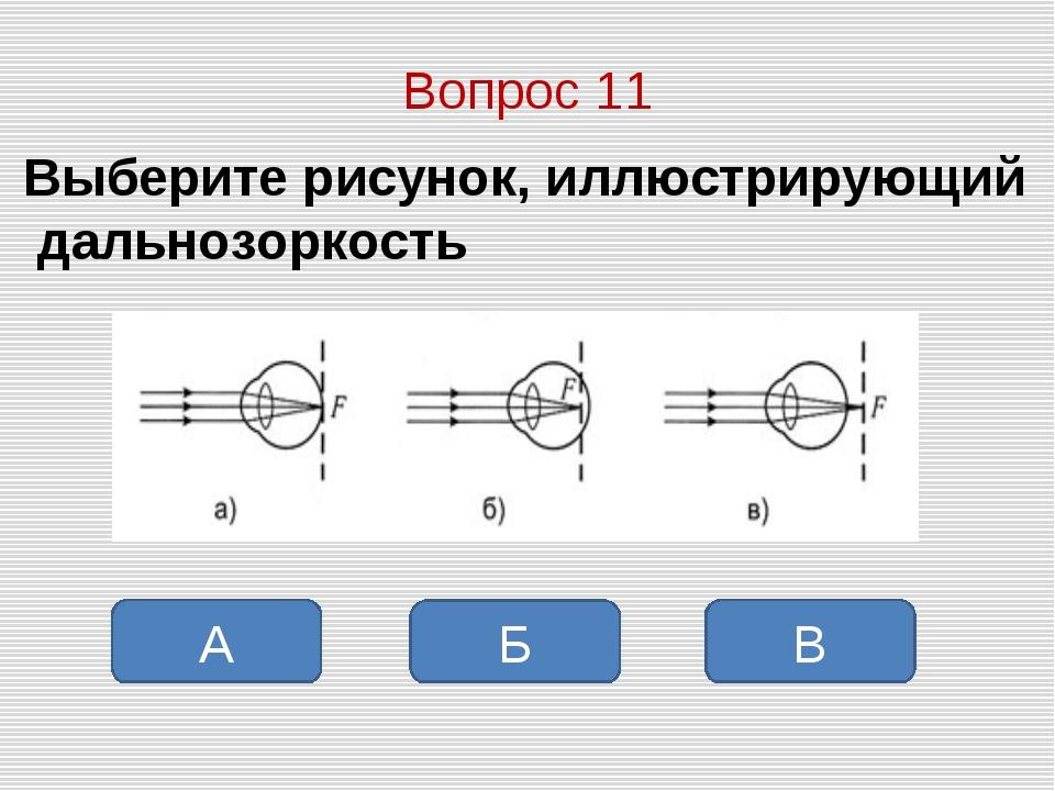 Вопрос 11 Выберите рисунок, иллюстрирующий дальнозоркость В Б А