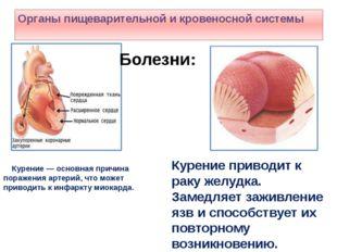 Курение — основная причина поражения артерий, что может приводить к инфаркту