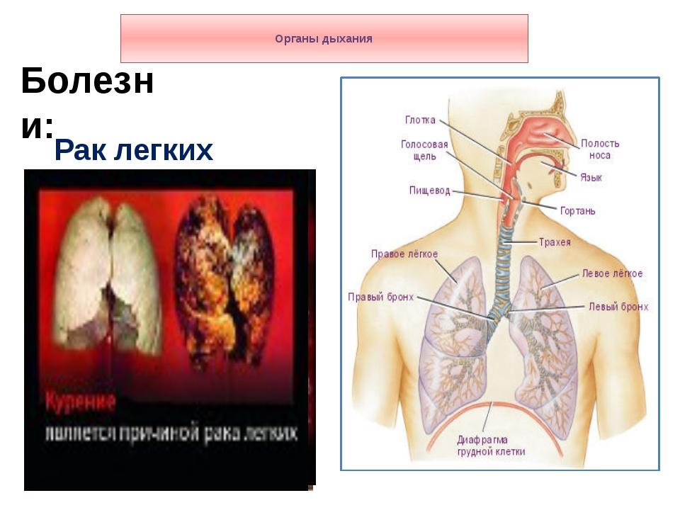 Органы дыхания Болезни: Рак легких