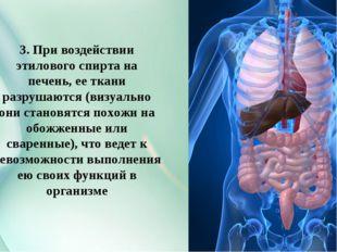 3. При воздействии этилового спирта на печень, ее ткани разрушаются (визуальн