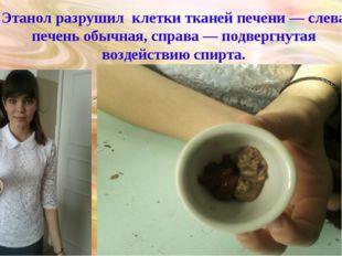 Этанол разрушил клетки тканей печени — слева печень обычная, справа — подверг