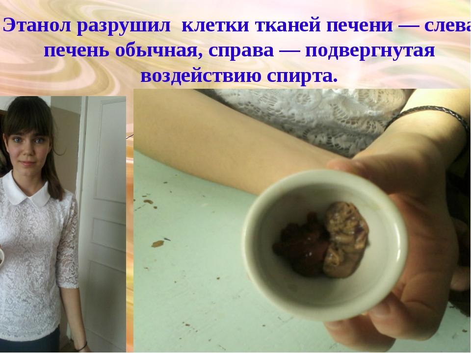 Этанол разрушил клетки тканей печени — слева печень обычная, справа — подверг...