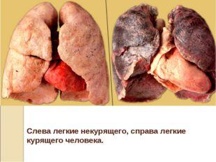 Слева легкие некурящего, справа легкие курящего человека.