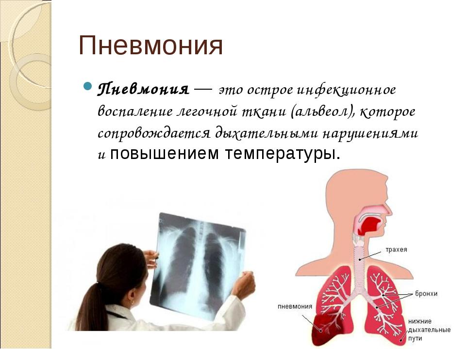 Пневмония Пневмония—это острое инфекционное воспаление легочной ткани (альв...