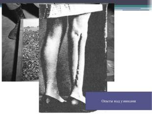 Обручальные кольца, снятые с узников нацистского концлагеря Опыты над узниками