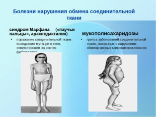 Болезни нарушения обмена соединительной ткани синдром Марфана («паучьи пальцы