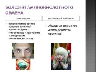 алкаптонурия глазо-кожный альбинизм нарушение обмена тирозина вследствие пони