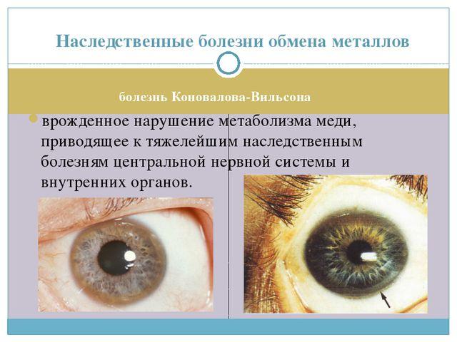болезнь Коновалова-Вильсона врожденное нарушение метаболизма меди, приводящее...