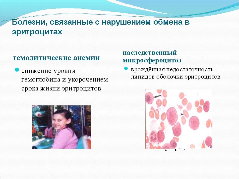 Болезни, связанные с нарушением обмена в эритроцитах гемолитические анемии на...