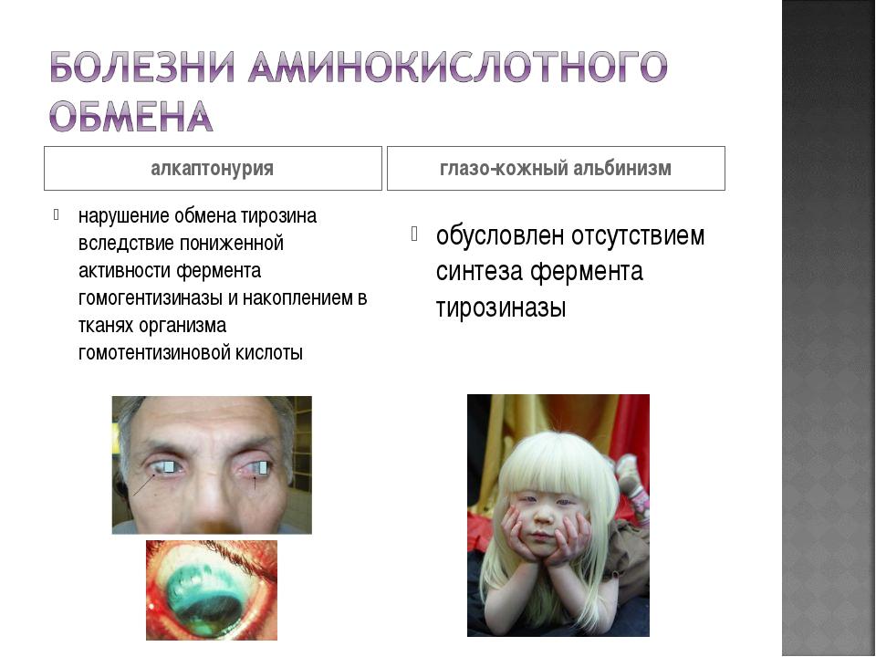 алкаптонурия глазо-кожный альбинизм нарушение обмена тирозина вследствие пони...