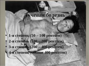 Лучевая болезнь 1-я степень (50 – 100 рентген) 2-я степень (100 – 200 рентге