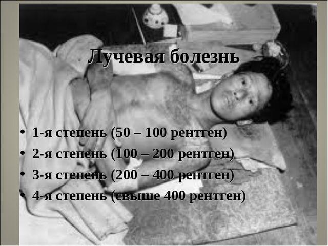 Лучевая болезнь 1-я степень (50 – 100 рентген) 2-я степень (100 – 200 рентге...