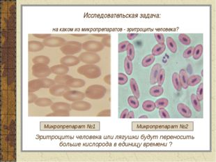 Исследовательская задача: на каком из микропрепаратов - эритроциты человека?