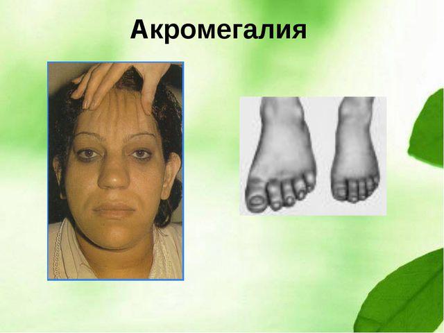 Акромегалия